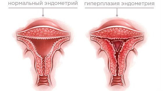 hipertenzija su endometriumo hiperplazija)