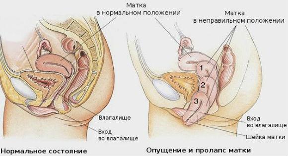 svorio netekimas gimdos prolapsas)